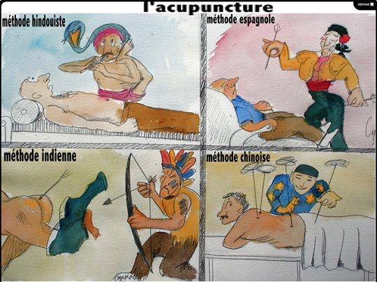 Les acupuncteurs leur piquent des patients.